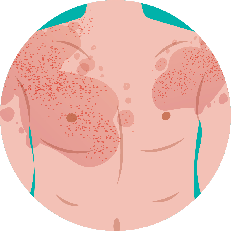 erythrodermic-psoriasis.jpg